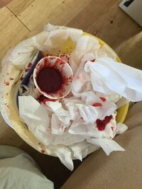 の 鼻血 塊 レバー 血