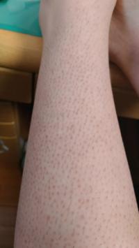 【足の脱毛、赤い斑点について】 ミュゼに1年ほど前通っていた、高校2年女子です。  小さな頃から体毛が太くて多く、カミソリで逆剃りしたり、除毛クリームを使ったり、毛抜きで抜いて...、など、大分皮膚を痛めつけていました。  そのせいで膝下に赤い斑点があり、せめて毛の処理の回数だけでも少なくなればと思いミュゼに通い始めました。(下部に画像有)  膝下の脱毛コースであと2回ほど残っているのですが...