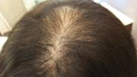 39歳女性です。 段々薄くなる髪に悩んで おります。 毎日洗っても痒い頭皮湿疹 ができてしまいます。  びまん性薄毛症になってしまいスカスカになりました。 この状態の薄毛はやはりヒドイでしょうか?