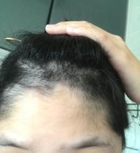 おでこから髪の毛が生えてくるのですが、どうすれば無くせますか?抜くのは痛いので嫌です。