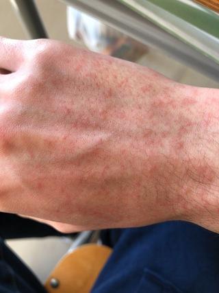 麻疹 手の甲 蕁