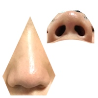 整形について、写真付きです。 お見苦しい写真になりすみません。 皆さんならどのような鼻の形に整形しますか? 昔から鼻がコンプレックスで整形費用もある程度貯まってきました。 顔のバラ ンスなどもあると...