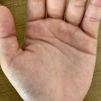 手相の見れる方に教えて頂きたいです。 人差し指指の付け根の下あたりに、はっきりとひし形があるのですが、この手相に意味はありますか? 他にも画像の手相で分かる点ありましたら教えて頂き たいです!お願い...