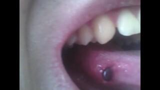血豆 原因 舌