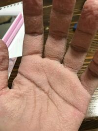 最近お風呂に1分くらい入ってると手がこんなにふやけて?痛くなります。何かの病気でしょうか?
