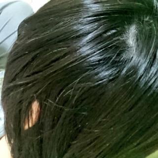 遺伝 若白髪