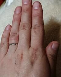 昨日、彼に指輪を買ってもらいました。 もちろん店頭でサイズも測ってもらっての購入です。  店員さん曰く、お客様は7号でいけると思いますと言われ、7号を買いました。 以前は8号をずっと 着用していました。  少しきつめのほうがいいと言われ、7号を買ったのですが、やはり1日ずっとはめていて、サイズが少し小さくてきついのか薬指が鬱血したように見えるのですが、お直ししたほうがいいのでしょ...