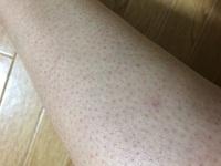 足の毛穴がブツブツしてて汚くて嫌です どうしたら綺麗な足になれますか? 毛も男性みたいに濃ゆくてカミソリで剃ってます どうしたら毛が薄くなりますか? 剃る時の注意点もありましたらよ ろしくお願いします