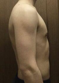 この画像を見て、私のバランスの悪い大胸筋をどう鍛えるべきか教えて下さい。 大胸筋がカッコ悪いことで悩んでいます。 トレーニングはディップス、バーベルベンチプレス、チンニングをしています。 その他にもア...