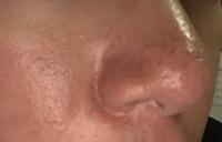 閲覧注意 オイリー肌で悩んでいます 僕は前から皮脂が多い事で悩んでいて、特に鼻周りが酷く毛穴の詰まりも結構あります 1ヶ月前にバルクオムという洗顔を買ってみたのですが、少しツヤが出た くらいで今の所効果が少ないです。かなり値段が高いのでもっと安価な物でこのような肌にオススメの洗顔、化粧水、乳液があれば教えていただきたいです。