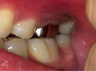 とき 歯茎 痛い 腫れ が て