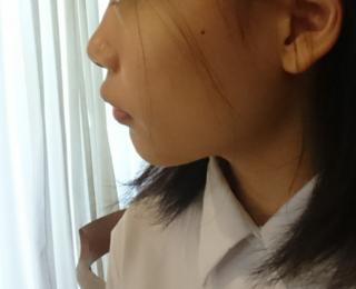 口ゴボ,口呼吸,矯正,小学生,上顎前突,ドクター,名医相談所