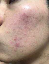 この肌荒れどうすればいいでしょうか?メラノccの化粧水とか肌美精の大人のニキビ対策の美白クリームを使いましたが全然効果がなくてむしろ悪化したような気がします。他に良い方法ありますか?