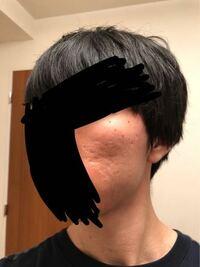女性に質問です。 僕は今大学生なのですが彼女ができません。 写真のように両頬にクレーターニキビ跡があり、とても醜い外見です。 やはりここまでクレーター肌が酷いと恋愛対象にはならないですよね?