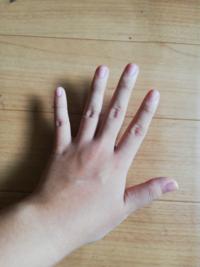 人差し指で全部の弦を押さえるやつ(バレーコードって言うんですかね)ができないんですが、どうすればいいでしょうか? 他の指も弦を押さえていて、人差し指に力を入れようとすると他の指がはなれてしまいます。逆もしかりです。   そもそもの指の形がおかしいからなんですかね?