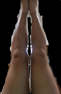 脚の太さが悩みです。太もも51センチ、膝上35センチ、ふくらはぎ36センチ、足首19センチ、身長158です。どこをどうすればよいかアドバイスいただけないでしょうか?