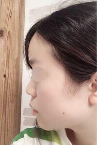 横顔(画像あり)がコンプレックスなので整形を考えています。私の場合鼻にプロテーゼなどを入れて高くする手術と人中短縮をやれば改善されるでしょうか?詳しい方お願い致します。