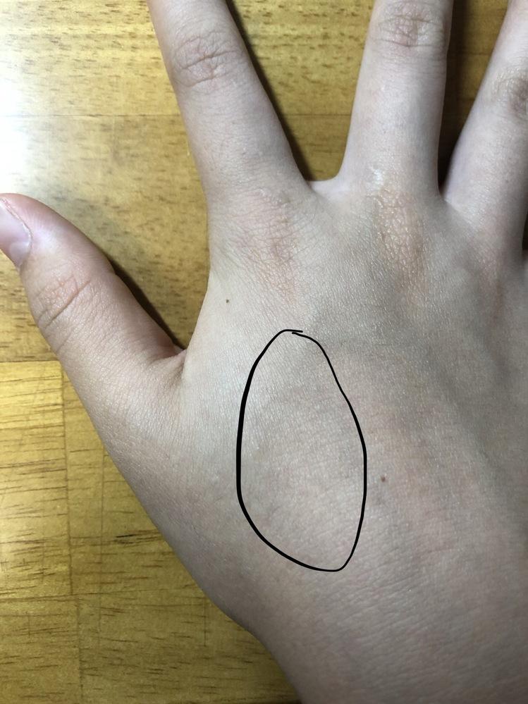 場所 手の甲 痛い 手の甲が痛い:医師が考える原因と受診の目安 症状辞典