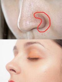 私は小鼻の横に深い溝があり、すごくコンプレックスに思ってます。コンシーラーで隠しても隠しきれない感じがします。 上のような黒い溝をなくし、下のような小鼻にするにはどんな方法がありますか? 整形ならどんな整形がいいのか、コスメならどんなコスメがいいのかアドバイスしていただけると嬉しいです!