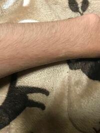 腕毛についてです。 毛深いし濃いので処理したほうがいいのか迷います。 1回7月から生やしてこうなりましたが、まだ生え変わってはないのでまってみますが、生え変わったら少しは先端も細くなりますか? また剃...