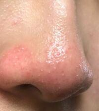 化粧残りや洗顔さぼりで鼻にぷつぷつができてしまいました。これはニキビですか? 助けてください ♀️ 頬などは乾燥肌なのに鼻だけ脂性肌なのでとても厄介です。しかも敏感肌で去年はすごい荒れました  良い毛穴の洗顔などがありましたら教えてください。 学生なのでプチプラなものだと嬉しいです。 私が、今使っているのはちふれのウォッシャブルコードクリームとカウブランドの無添加洗顔フォームのピンク色です。...