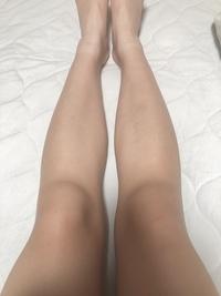 膝が大きくて悩んでいます。 膝下にお肉みたいなものが付いていてつまめます。膝痩せのために運動、マッサージをしていますが効果がありません。 膝を小さくするには何をするべきでしょうか?