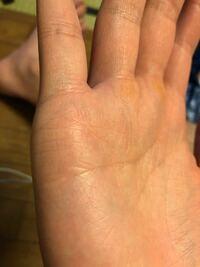 うっすらと右小指の下に薄い線が3本程度ありますが、女性と恋愛できる可能性はあるという訳ですか?
