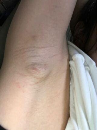 痛い 脇の下