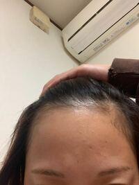 20代女、生え際が薄いです。 寝る時に摩擦で擦れてるのだと思うのですが 生え際の髪の毛を増やす方法はありますか?  シャンプーはヒマワリシャンプーの ボリュームリペアを使用しています。 ボリュームが少ない...