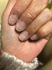 中指と薬指はグリーンネイルになってますか? この上からジェルネイルしても大丈夫ですか?