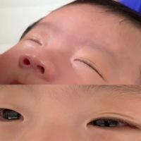 生後3ヶ月の子供です。 眠い時に画像のようになります。 起きると完全な一重です。 将来的に二重になる可能性はありそうですか?