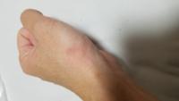 ファンシーラットに爪で引っかかれて傷になったのですが数分後蚊に刺された後みたいに腫れて痒みが出ました なんかのアレルギーですよね?対象方法などがあれば教えて頂きたいです。