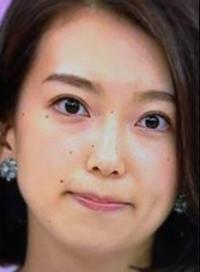 NHKの和久田麻由子アナはどうしてホクロが多いのですか?