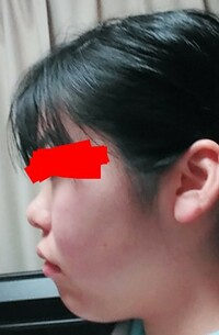 横顔の頬肉の落とし方を知りたいです。 輪郭三点の整形手術をすれば改善できますでしょうか? また、整形以外の改善点方法も知りたいです。 よろしくお願いします