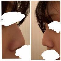 鷲鼻の整形について わたしは鷲鼻です。 小さい頃からものすごくこの鷲鼻がコンプレックスで悩んできました。 なので、なんとかして直すか目立たなくさせるかしたいです。 ヒアルロン酸は一時的なので、プロテーゼというものをいれて鷲鼻を直す手術をしたいのですが、このレベルの鷲鼻でもプロテーゼで目立たなくさせるor直すことはできるのでしょうか? よろしくお願いします!