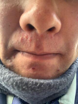 荒れる 下 鼻 の