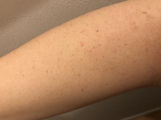 赤い 点々 太もも 太ももの赤い斑点はかゆい?かゆくない?原因や対処法は?