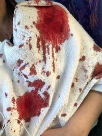 閲覧注意。 インダストリアルをニードルで開けて、今は塞いだのですがこれだけ血が出ました。 インダストリアルは初めて開けたのですが、こんなに出血するものなのでしょうか? 服の肩の部分が真っ赤になって滴り...