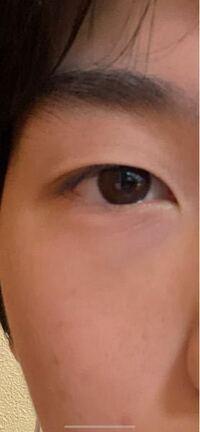 重 二 片目 だけ 片目だけ二重がモテる?その真相や可愛い二重にする整形メイクなど大公開