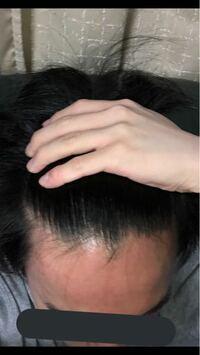 前髪の生え際は正常でしょうか? 現在18歳男です。  すごく悩んでいるので回答お願いします。