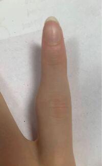 と 違い 突き指 骨折 の