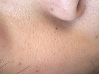 頬の毛穴に悩んでいます。  汚い写真申し訳ありません。30代女です。 写真のように頬のぶつぶつした毛穴に悩んでいます。これはみかん肌なのかたるみ毛穴なのかどちらなのでしょうか? 現在 ちふれの濃厚アン...