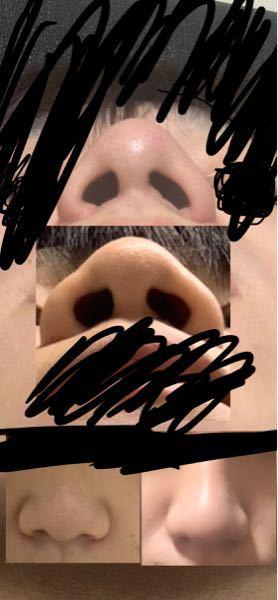 整形失敗ですか?正面の鼻の画像は左が整形前で右が整形後です。 鼻の下から撮った写真は下が整形前...