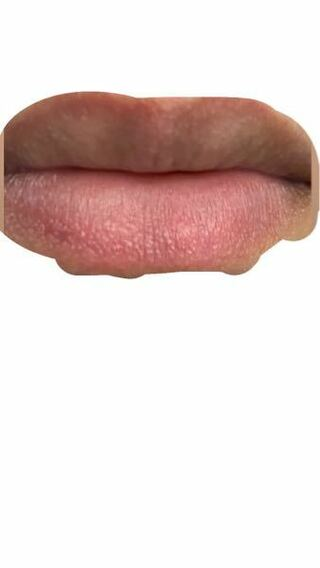 が ふち かゆい の 唇