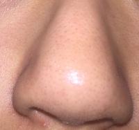 鼻の角質がなくなりません。 角質が取れる鼻パックなども週に一回やって、お風呂の後と朝に、導入化粧水、化粧水乳液をぬっています。それを数ヶ月つづけていますが、綺麗になりません。どうし たらいいでしょうか