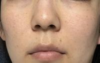 シミ取りレーザー治療を考えているのですが、 レーザー当てるとシミが濃くなったりするんですか?美容皮膚科医がYouTubeで言ってました。 あとこれはレーザーで当てたら大丈夫なシミですか? 肝斑もありますか?