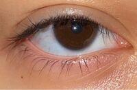いろんな人に桃花眼、三白眼、ジト目、黒目の一部が変。 と言われます。(^^; 正直よくわかっていないのですが笑 (黒目の一部が変なのは自覚してます。) 私の目のどの部分の事を指しているのでしょうか。 それと...
