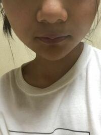 団子鼻なんですが可愛いと思いますか? いつもブッサイクって言われるから、鼻がコンプレックスです