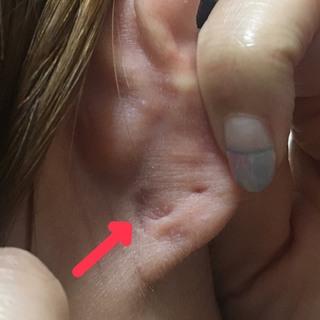押す と 痛い 耳たぶ