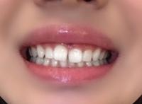 歯並びが悪く、特に前歯のすきっ歯が気になります。この状態では誰かに好きになってもらえないでしょうか?例えばちょっとでも可愛いなと思った子でも引いちゃいますか? この歯並びが昔からと てもコンプレックスです。 友達にも聞きにくくて、知恵袋で質問させていただきました。